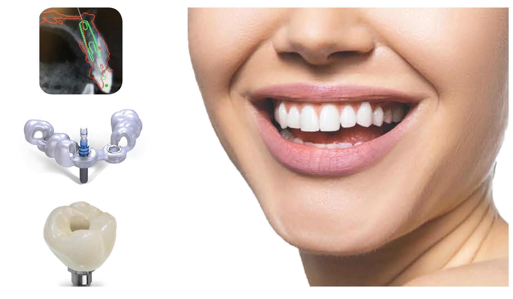 Digital Implant Placement - First Choice Dental Lab