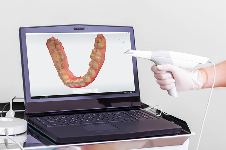 intraoral scanner - first choice dental lab