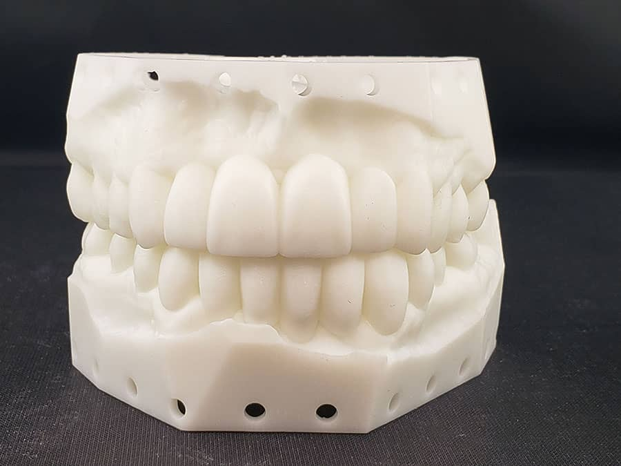 diagnostic wax-up - crowns and bridges - first choice dental lab