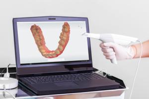 Digital impressions - dental impression scanner