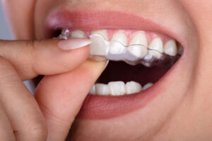clear aligners in dentistry